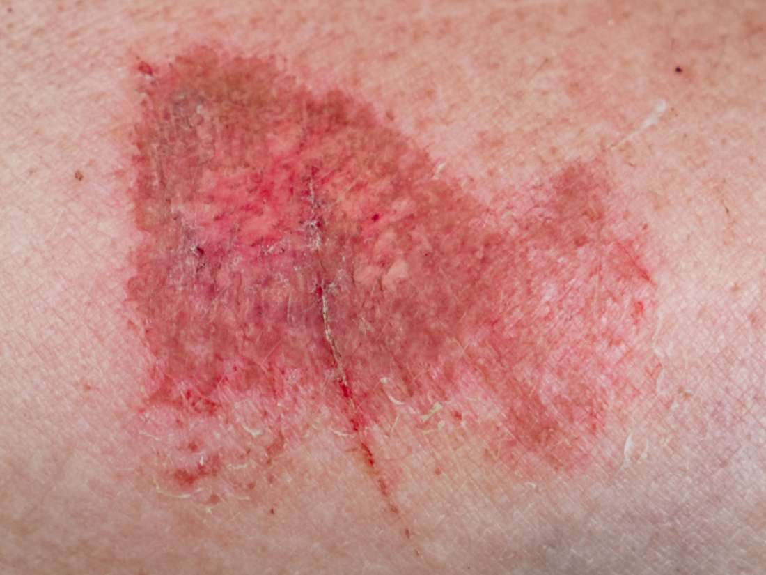 Friction Burn On Penis Symptoms, Treatment, And Prevention-6227