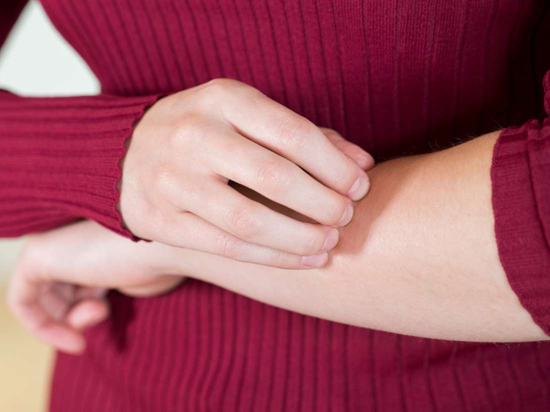 Itching without a rash: 8 possible causes and treatments