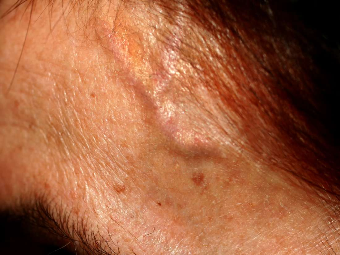 Forehead veins: Causes of bulging and treatment
