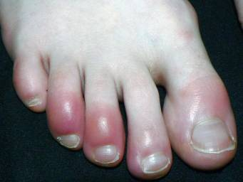 Why have my toes turned red?