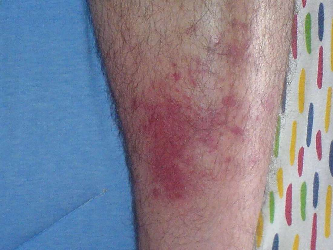 What to know about cellulitis from bug bites