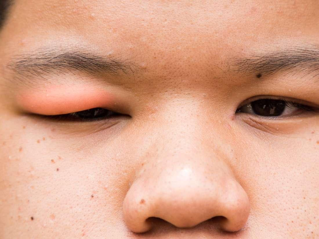 En enfermo niño hinchados ojos