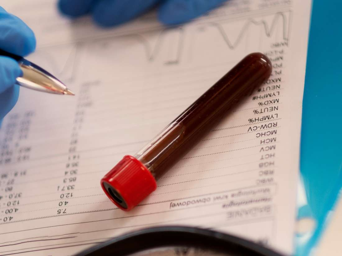 How long does it take to receive blood test results? A guide