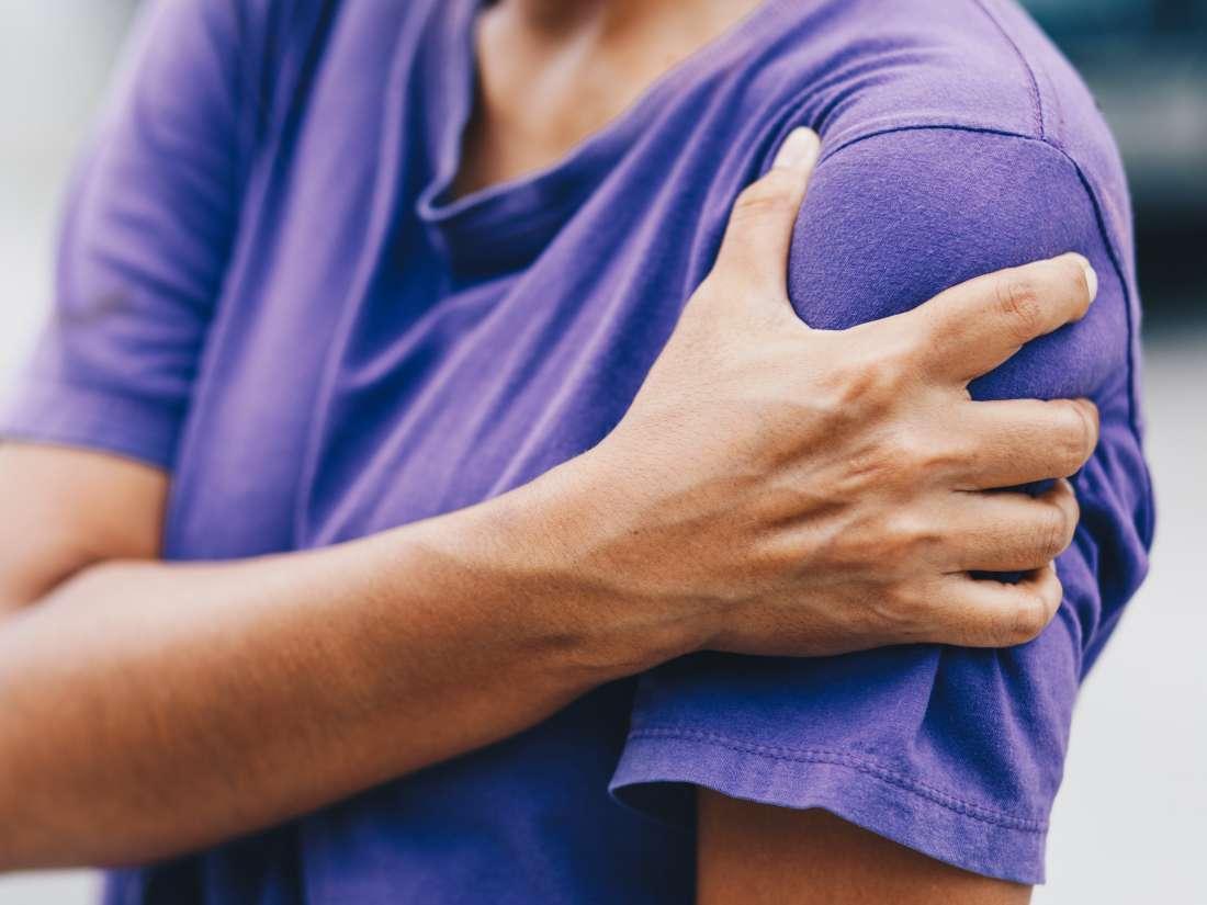 Brachial neuritis: Everything you need to know