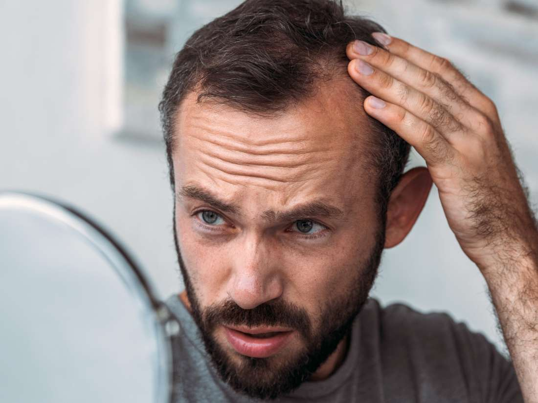 Medical News Today: What to know about thyroid function and hair loss thumbnail