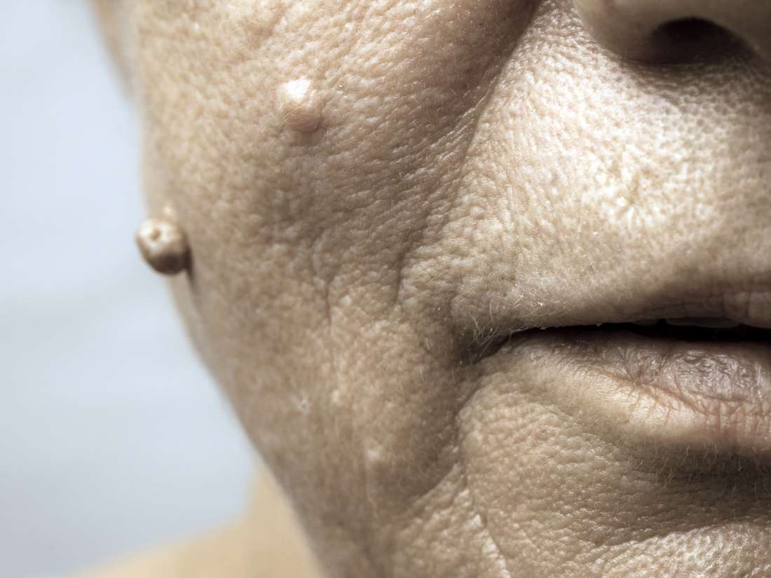 How To Get Rid Of Warts On The Face