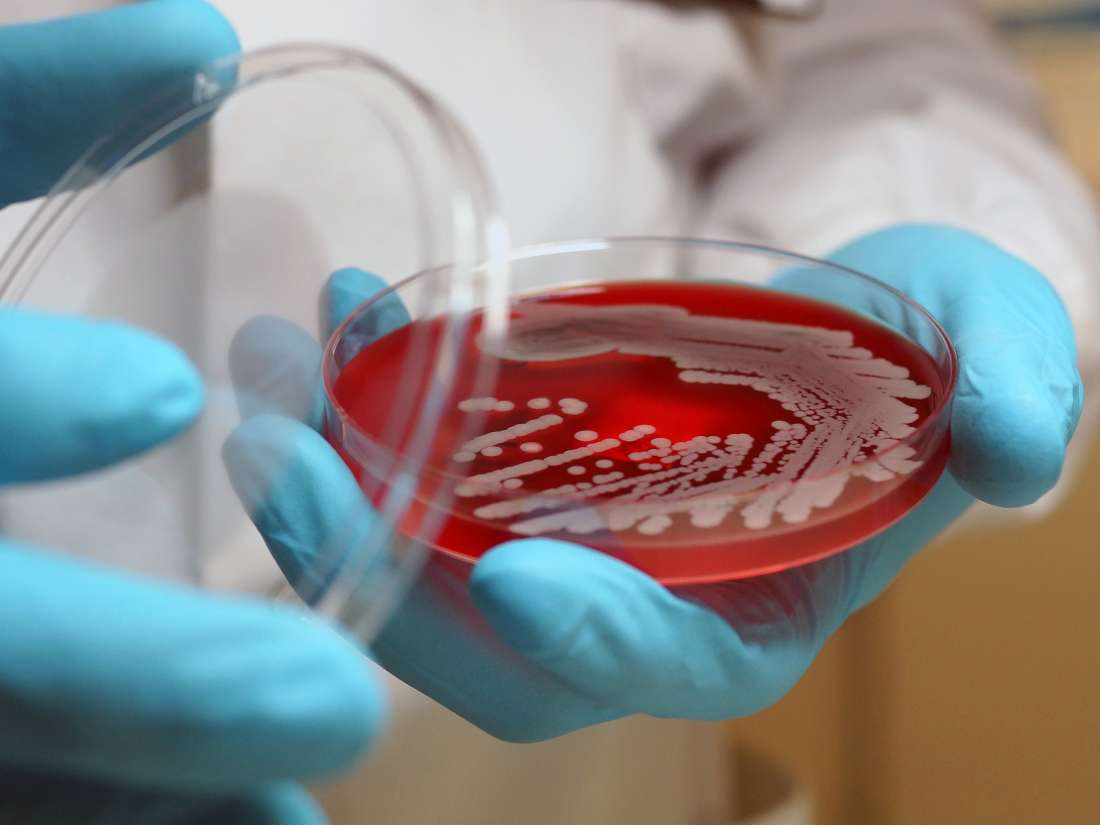 Superbugs: Everything you need to know