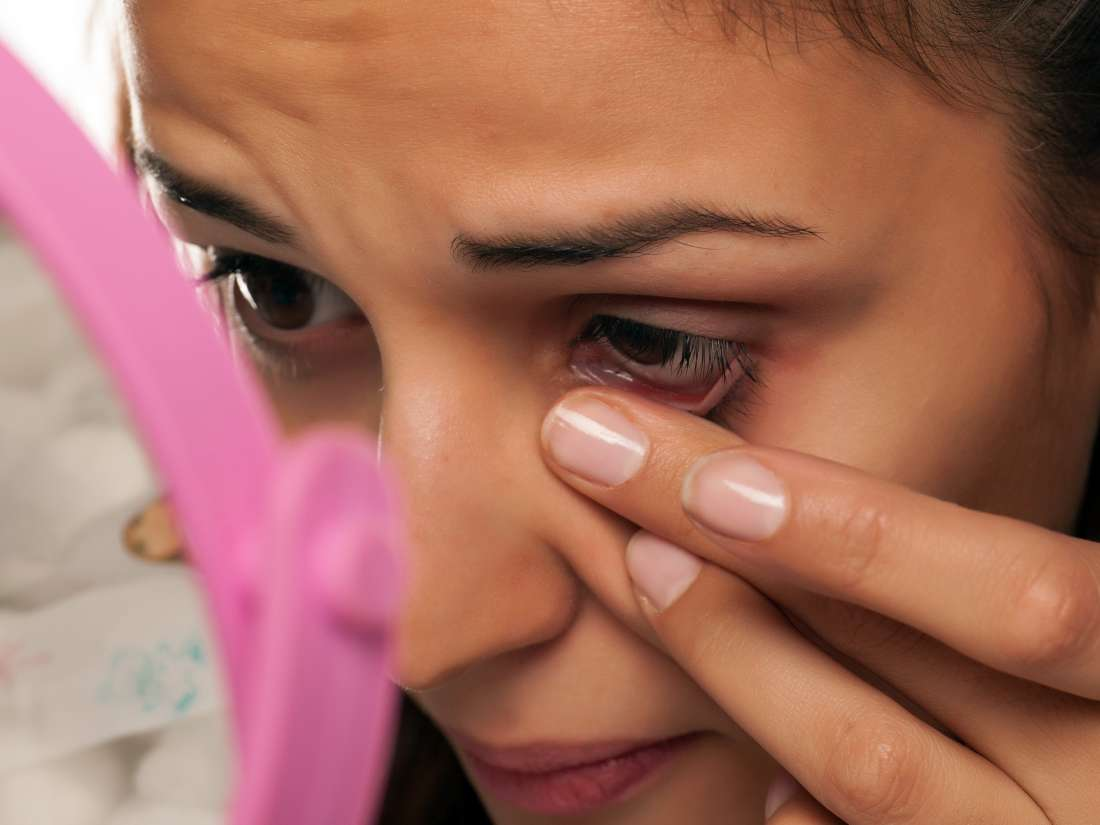 Skin Tags On Eyelids Causes And How To Remove Them