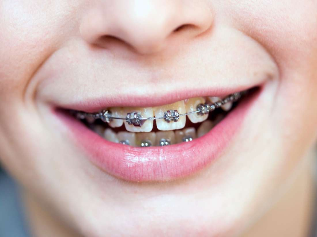 Image result for IVANOV Orthodontic Experts